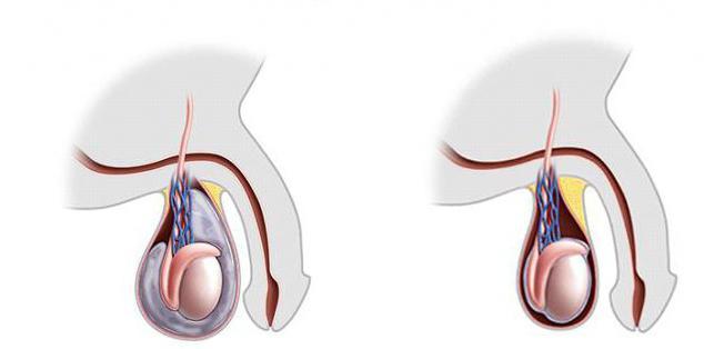 Bolestivé semenníky na dotyk tabletky na zlepšenie erekcie