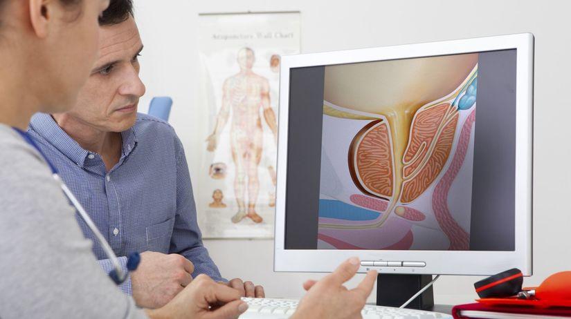 Urológ problémy s erekciou