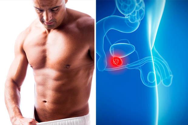 Problémy s prostatou výživové doplnky bez predpisu